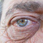 Cataratas: causas, síntomas y tratamientos